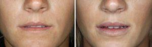 До и после коррекции губ гиалуронатом