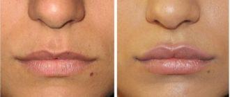 Воздействие гилауроновой кислоты на губы