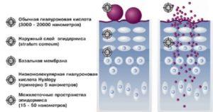 Схема гилауроновая кислота в организме