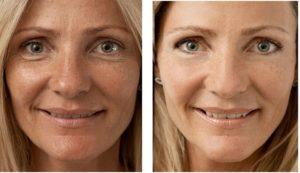 До и после гилауроновой кислоты