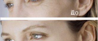 Воздействие гилауроновой кислоты на кожу вокруг глаз