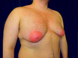 Проявление признаков гинекомастии