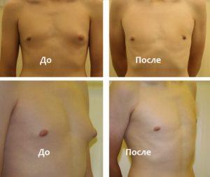 До и после лечения гинекомастии