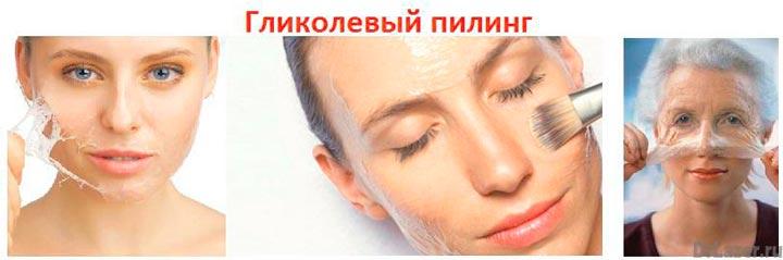 Гликолевый пилинг лица