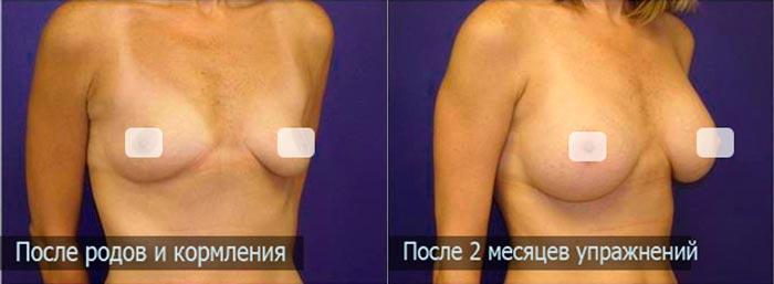Результат после упражнений на подтяжку груди после родов