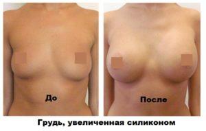 Грудь с силиконовыми имплантами