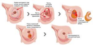 Ход операции уменьшения груди