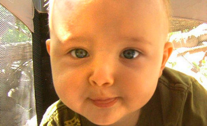 Искривление носовой перегородки у малышейПерегородка носа смещена от середины приблизительно у 80% малышей, причем в более половине ситуаций этот дефект врожденный, связанный со свойствами формирования носа во внутриутробном периоде. Кроме того, зачастую нос повреждается в момент родов, так как хрящи органа и кости довольно мягонькие, то даже незначительного воздействия бывает достаточно, дабы поменять их вид, причем чаще всего искривляется собственно перегородка в носу.
