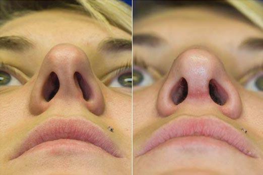 Искривлённая носовая перегородка