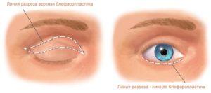 Операция по классической блефаропластике