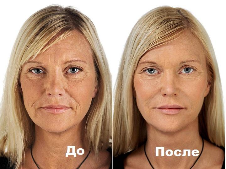 До и после использования геля-филлера