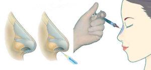 Корекция носа с помощью филлера