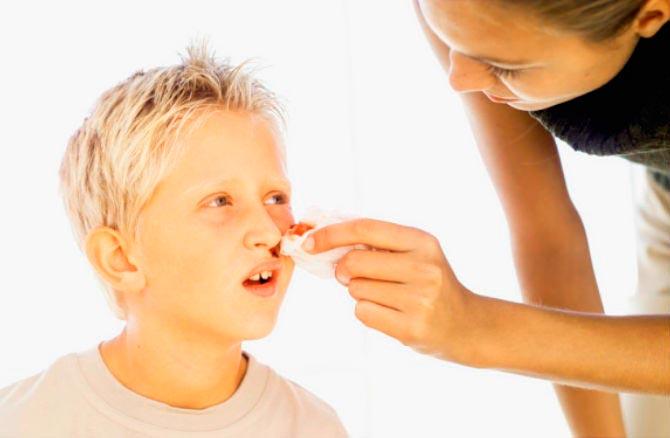 Кровотечения из носа у детей с искривленной носовой перегородкой