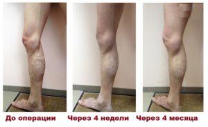 До и после лечения вен лазером