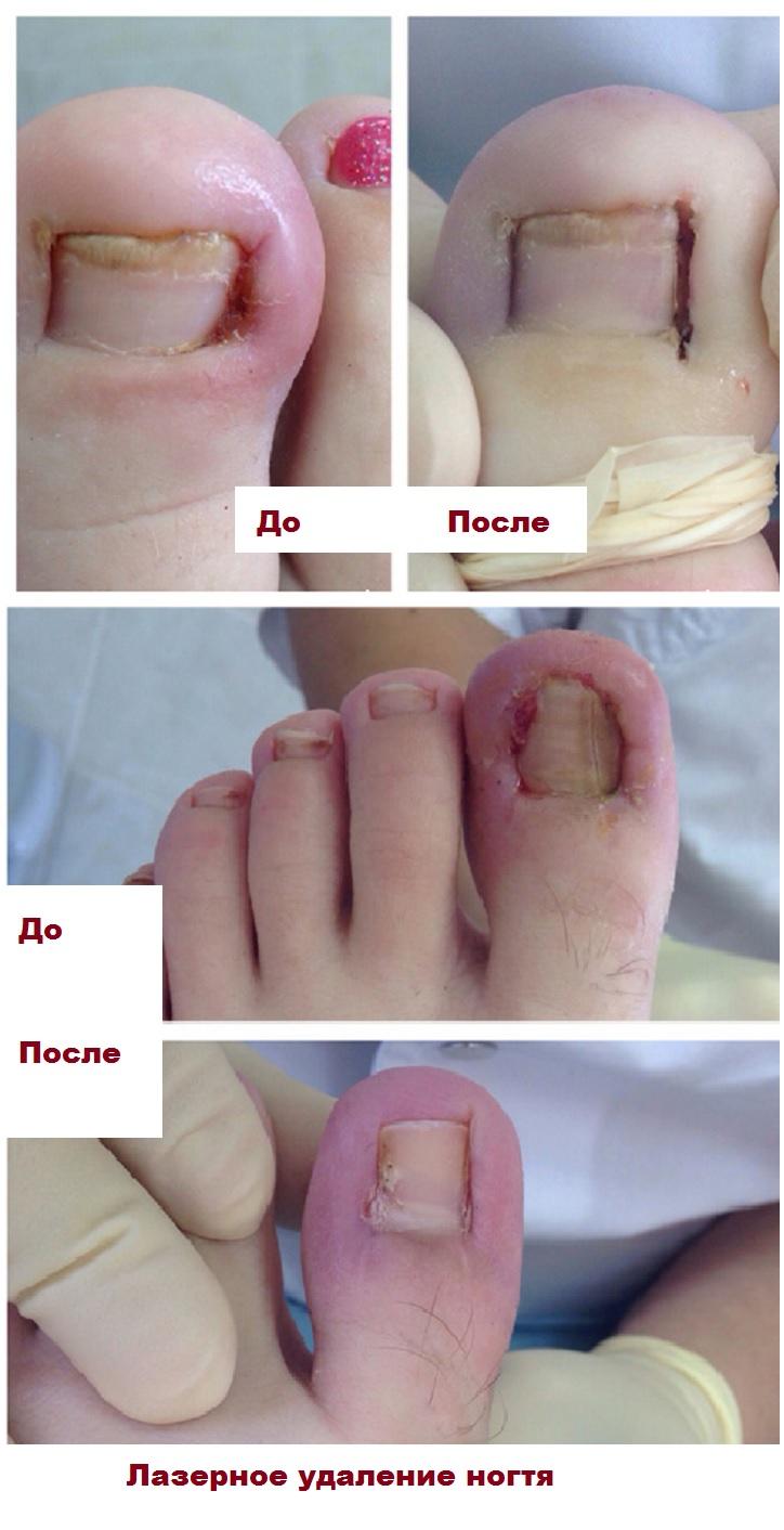 Результат лазерного удаления вросшего ногтя