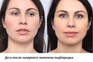 До и после липолиза лазером овала лица
