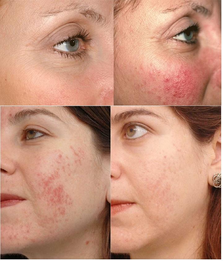 Фото акне до и после фототерапии