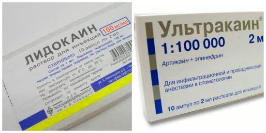 Анестезия при нитевом лифтинге