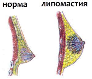 Схема образования липомастии