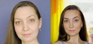 Маскировка незначительной асимметрии лица при помощи косметики