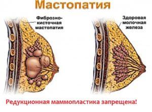 При мастопатии запрещена операция