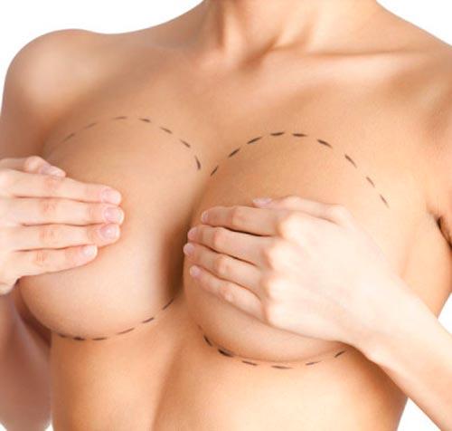 Мастопексия - хирургическая операция по подтяжке груди