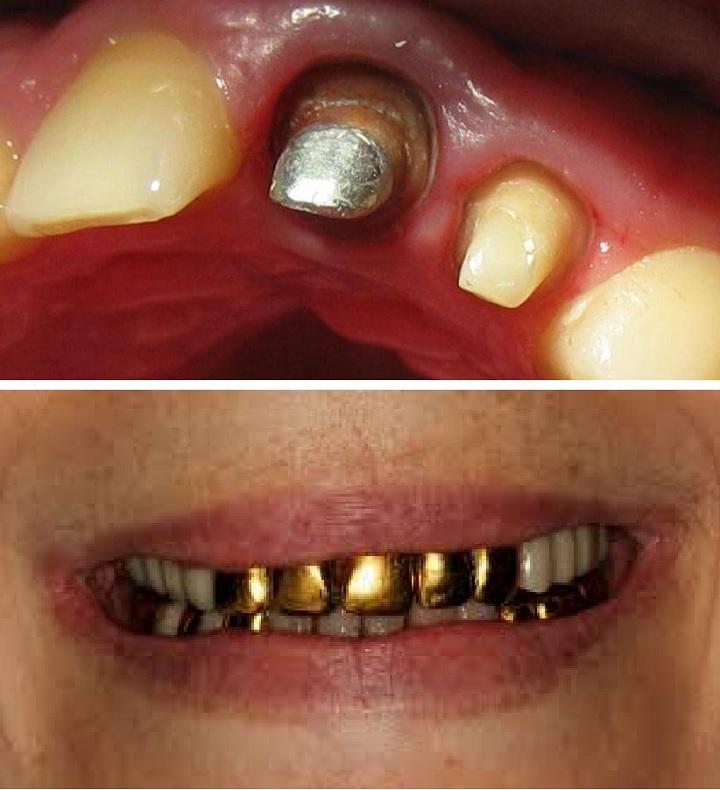 Металл в зубах