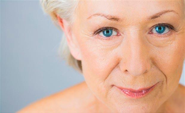 Морщины на лице -одно из показаний к проведению термажа