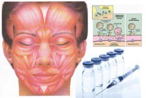 Действие Ботулотоксина на мышцы лица