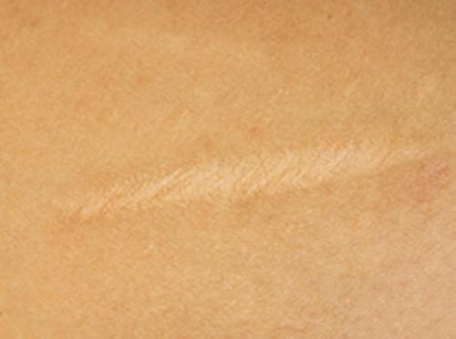 Нормотрофический рубец можно лечить кремом Келофибраза