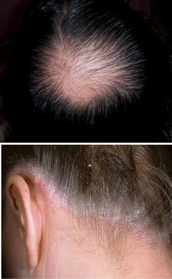Проблемы с волосами и кожей головы