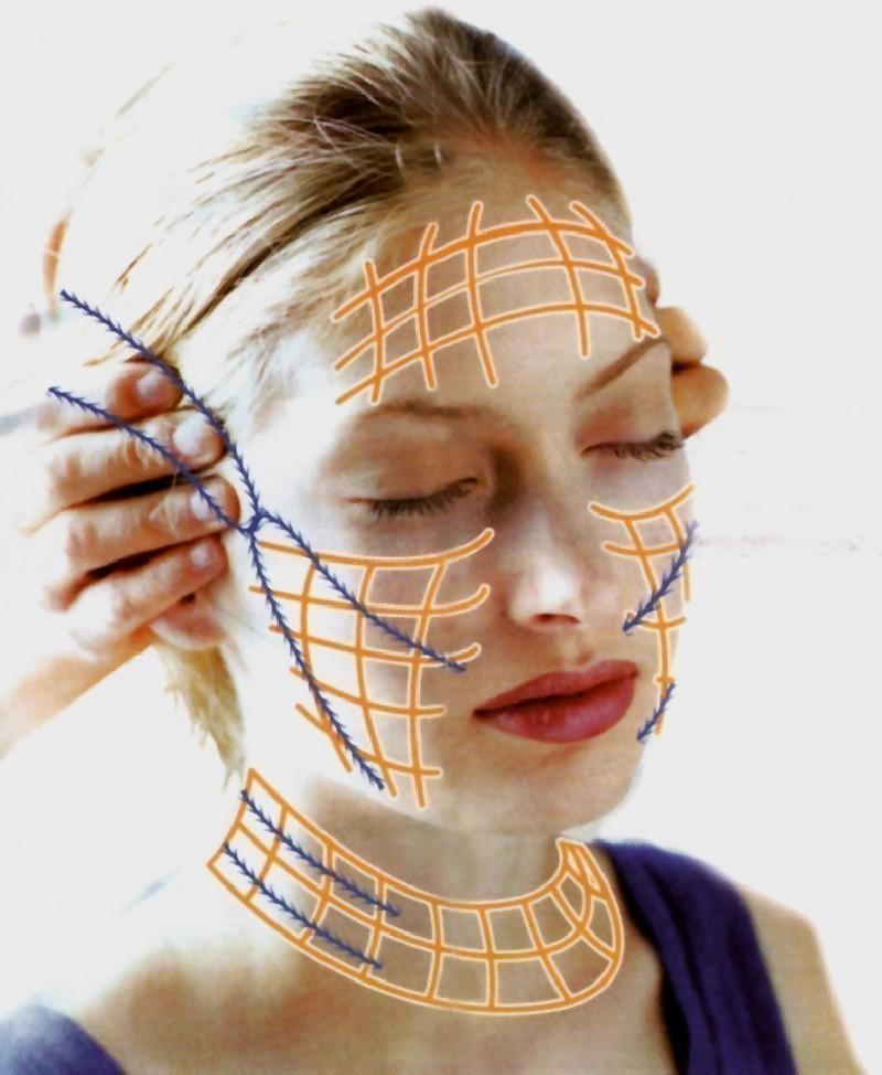 Подтяжка кожи лица нитями