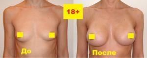 Маммопластика доступна с 18 лет