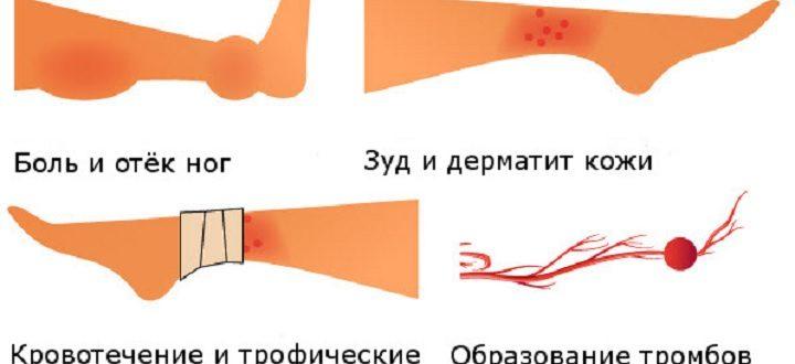 Возможные осложнения после удаления варикоза