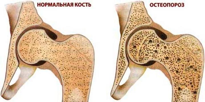 Остеопороз - одна из причин вальгусной деформации