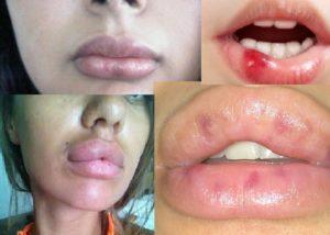 Неприятные последствия на губах