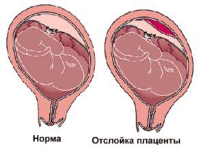Схема отслойки плаценты