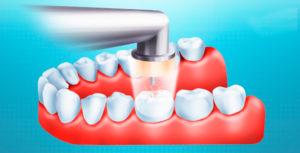 Озонотерапия используется и в стоматологии