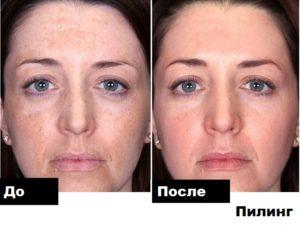 До и после пилинга. Фото лица