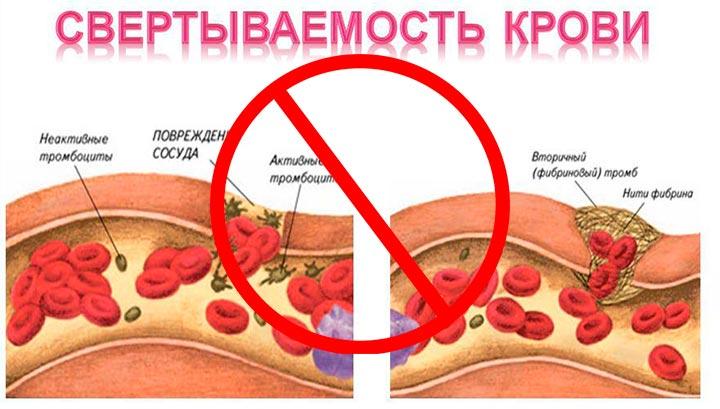 Плохая свертываемость крови - один из противопоказаний к блефаропластике