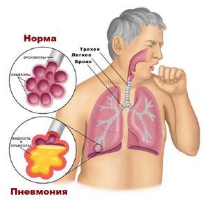 Образование жидкости в легких