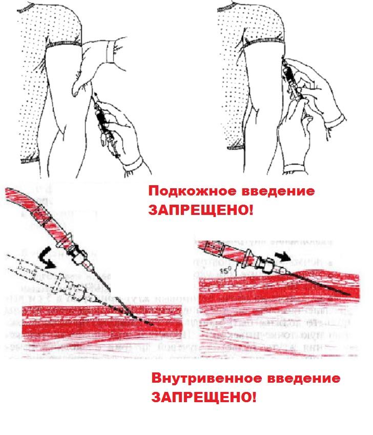 Предостережение по дипроспану
