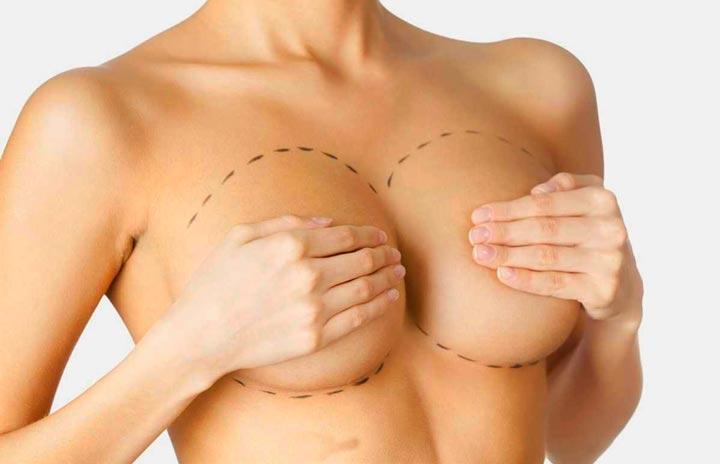 Что такое подтяжка груди с эндопротезированием