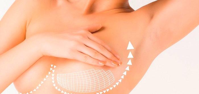 Показания к подтяжке груди нитями