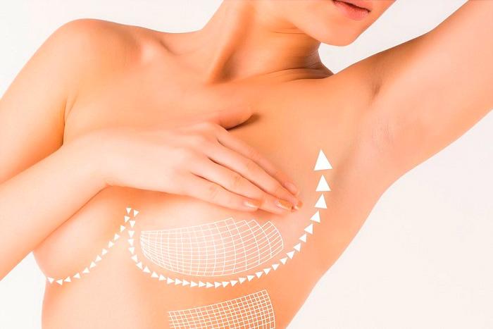 Подтяжка груди при помощи мезонитей
