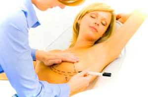 Подтяжка груди с помощью нитей