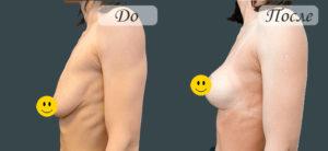 Результат подтяжки груди нитями