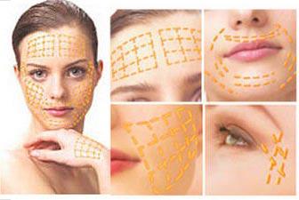 Подтяжка кожи лица золотыми нитями