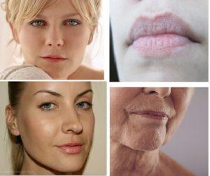 Некрасивые губы