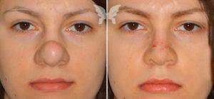 Окончательное и полное выздоровление после ринопластики носа